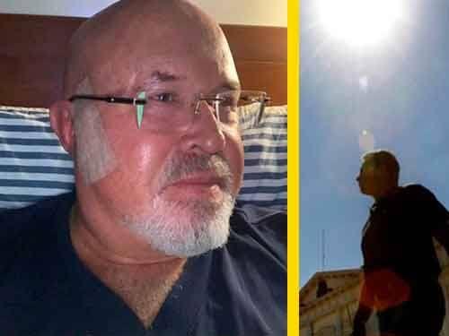 Carlos Bruce descansa después de intervención por cáncer de piel
